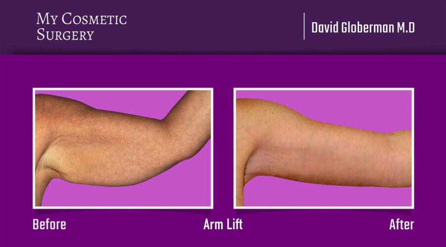 David Globerman Arm Lift Plastic Surgery