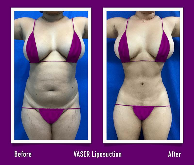 Dr. Jeffrey LaGrasso MD-VASER Liposuction