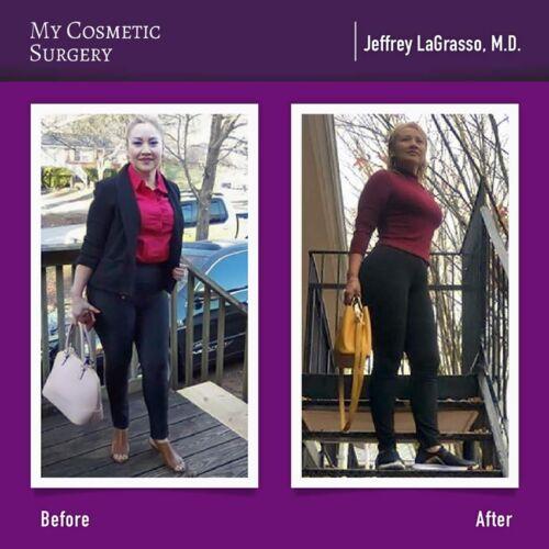 Jeffrey LaGrasso Liposucción-Tummy Tuck and BBL