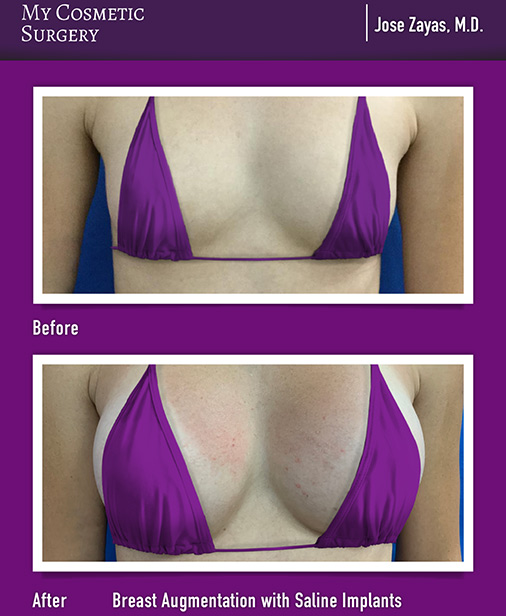 My Cosmetic Surgery Breast Augmentation miami