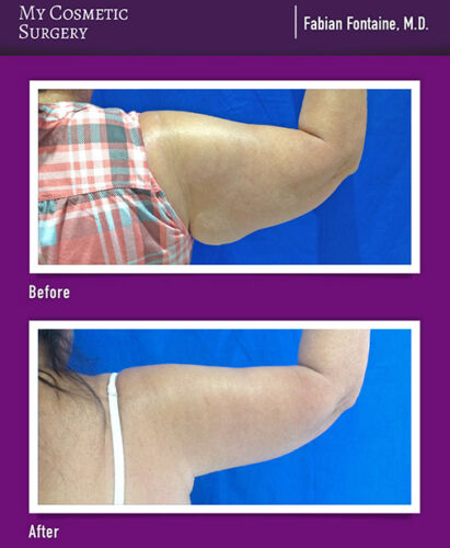 Dr. Fabian Fontaine MD, Arm Lift