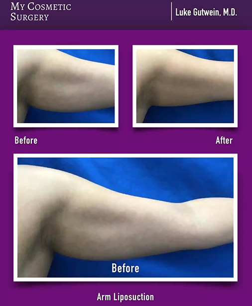 Arm lift Surgery my cosmetic surgery
