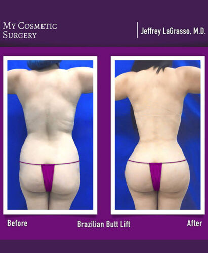 Dr. Jeffrey LaGrasso MD-Brazilian Butt Lift