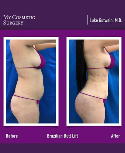 Dr. Luke Gutwein MD-Brazilian Butt Lift