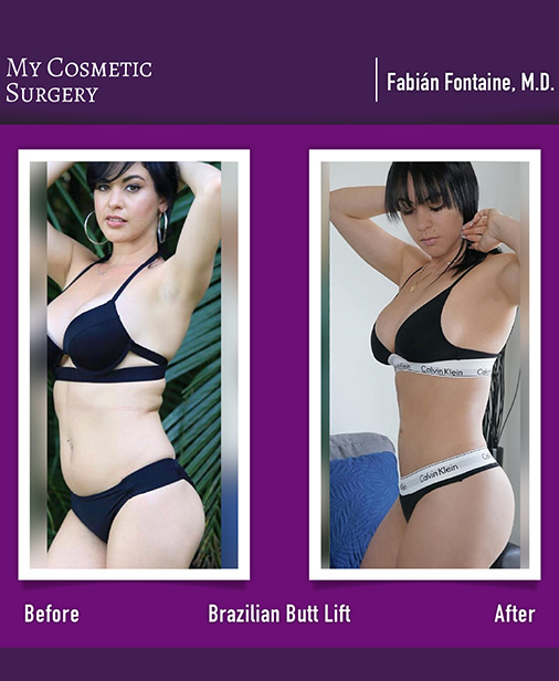 Brazilian Butt Lift My Cosmetic Surgery Miami