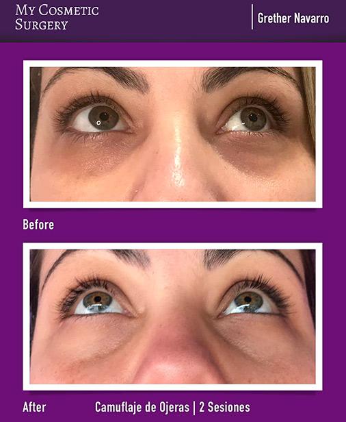 Tratamiento de Ojeras My Cosmetic Surgery Miami