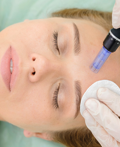Dermapen with Microneedles My Cosmetic Surgery Miami