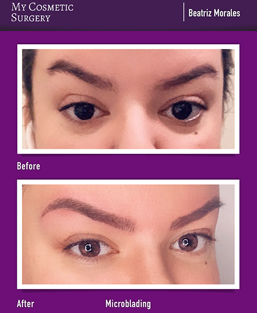 Eyebrows Microblading and Lashes My Cosmetic Surgery Miami