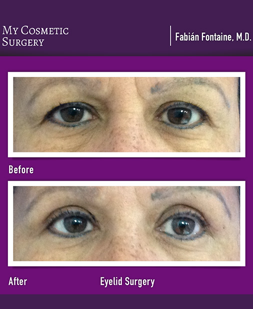Eyelid Plastic Surgery My Cosmetic Surgery Miami
