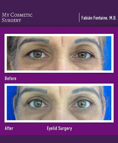 Dr. Fabian Fontaine MD-Eyelid Surgery