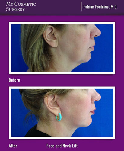 Dr. Fabian Fontaine MD-Face and Neck Lift