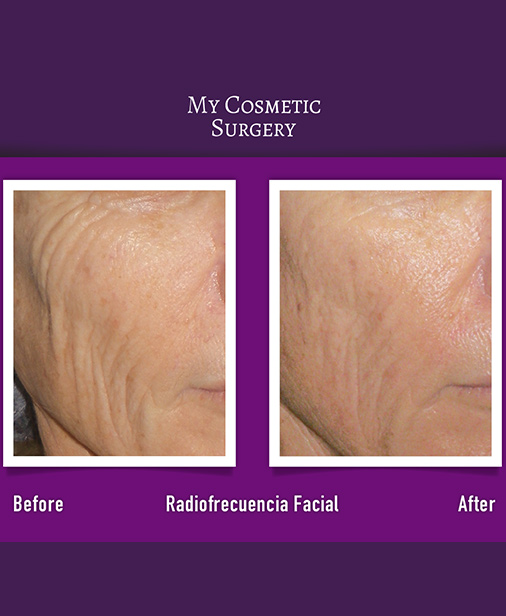 Fractional Radiofrequency with Microneedles My Cosmetic Surgery Miami
