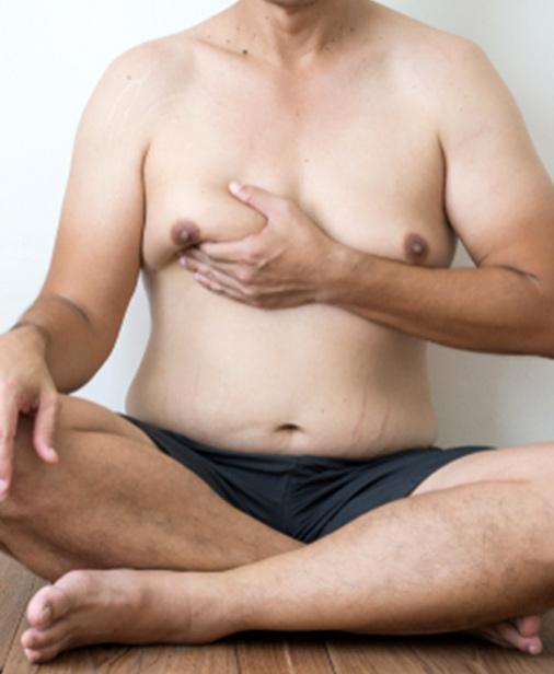 Gynecomastia Plastic Surgery My Cosmetic Surgery Miami