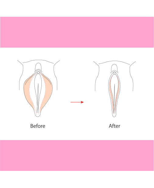 Labiaplasty Plastic Surgery My Cosmetic Surgery Miami