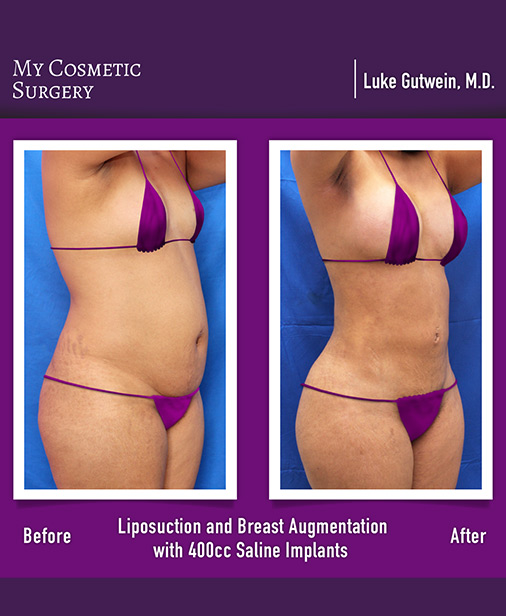 Liposuction surgery My Cosmetic Surgery Miami
