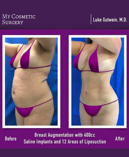 Dr. Luke Gutwein MD- Breast Augmentation
