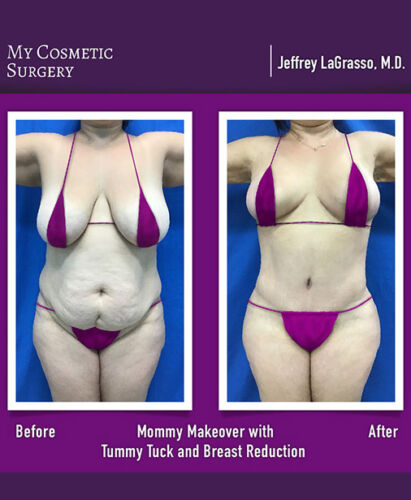 Dr. Jeffrey LaGrasso MD-Mommy Makeover