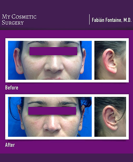 Otoplasty Surgery My Cosmetic Surgery Miami