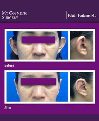Dr. Fabian Fontaine MD-Otoplastía