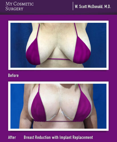 Dr. W. Scott McDonald MD-Breast Reduction