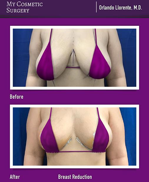 Orlando Llorente MD Breast Reduction