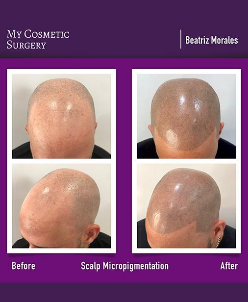 Scalp Micropigmentation My Cosmetic Surgery Miami