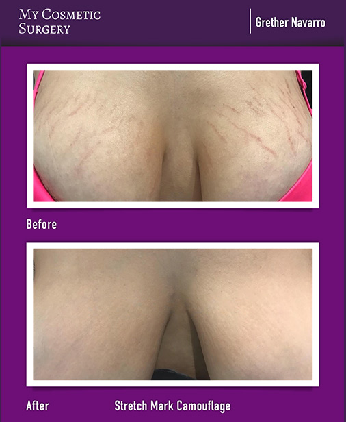 Stretch Mark Camouflage My Cosmetic Surgery Miami