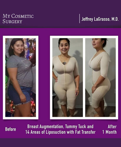 Dr. Jeffrey LaGrasso MD-Breast Augmentation