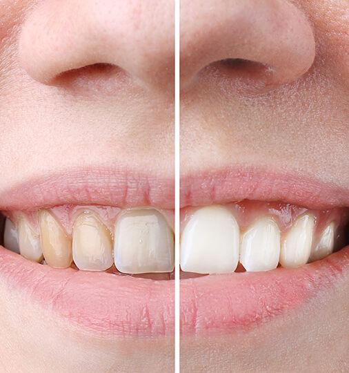 Teeth Whitening My Cosmetic Surgery Miami