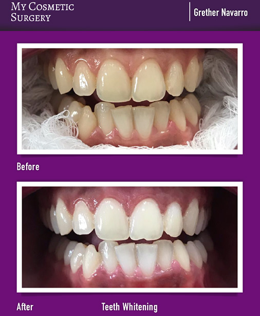 Teeth Whitening My Cosmetic Surgery Miami