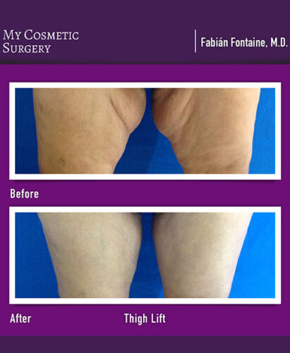 Dr. Fabian Fontaine MD-Thigh Lift