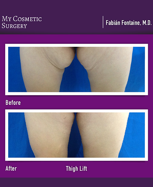 Thigh Lift Surgery My Cosmetic Surgery Miami