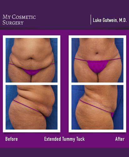 Dr. Luke Gutwein MD-Tummy Tuck Extendida
