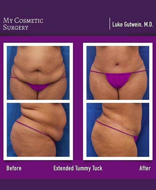 Tummy Tuck My Cosmetic Surgery Miami