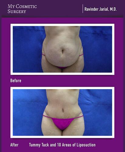 Dr. Ravinder Jarial MD-Tummy Tuck