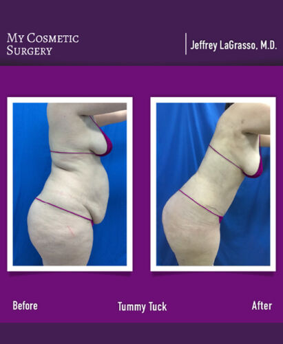Dr. Jeffrey LaGrasso MD-Tummy Tuck