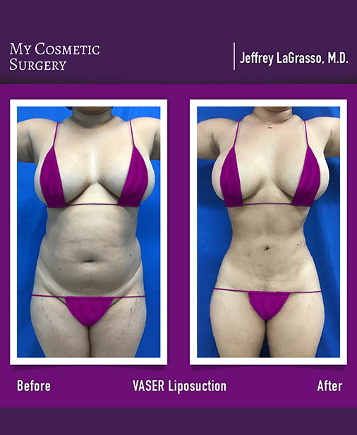 VASER Liposuction My Cosmetic Surgery