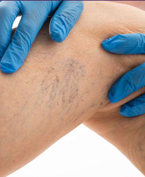 Varicose Veins My Cosmetic Surgery Miami