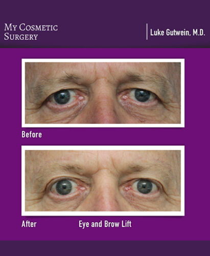 Dr. Luke Gutwein MD-Brow lift