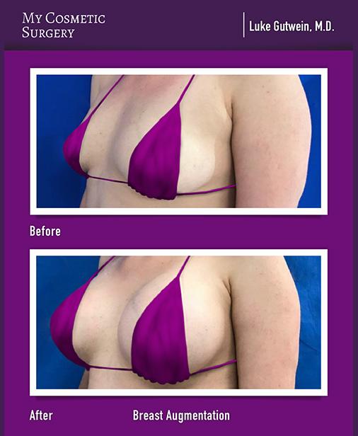 Breast Augmentation My Cosmetic Surgery Miami