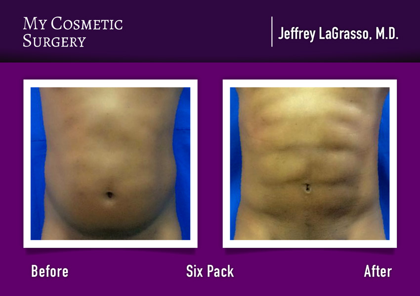 Six pack surgery My Cosmetic Surgery Miami