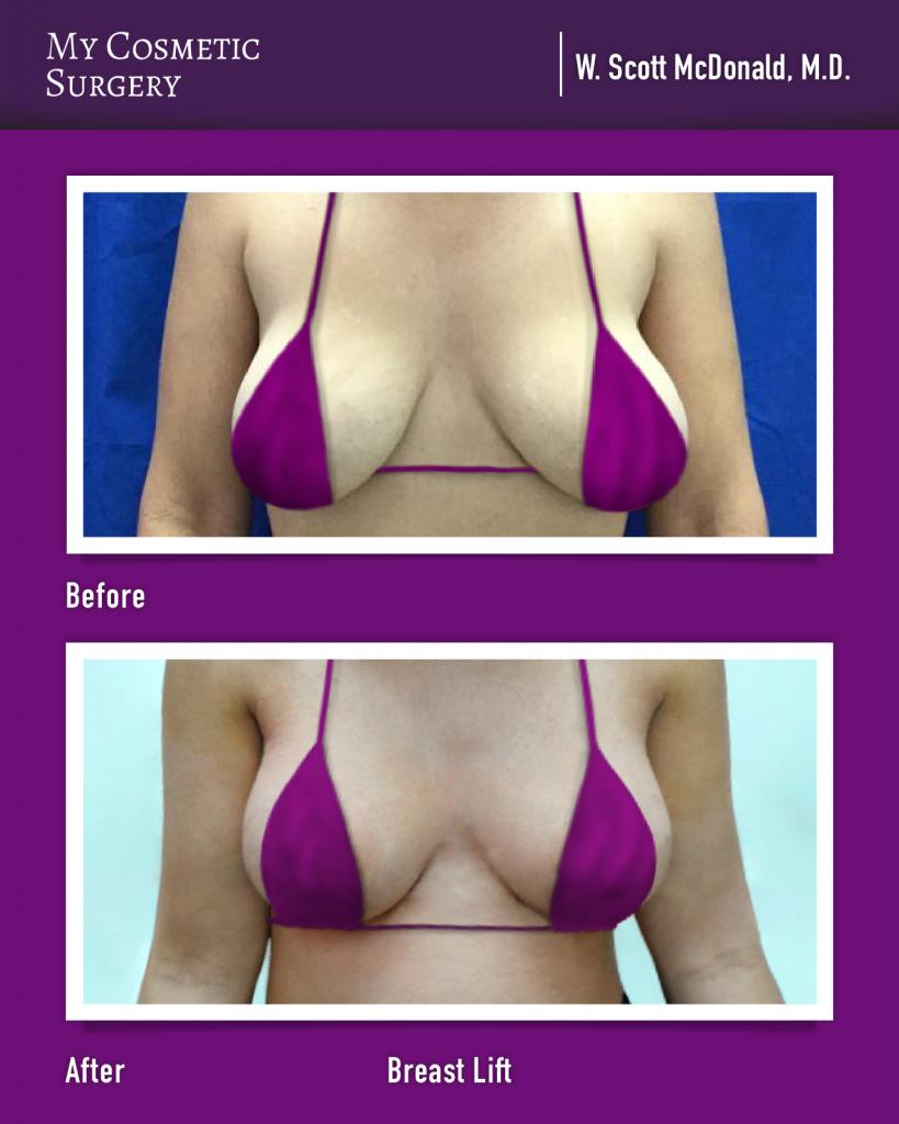 W. Scott McDonald MD - Breast Lift