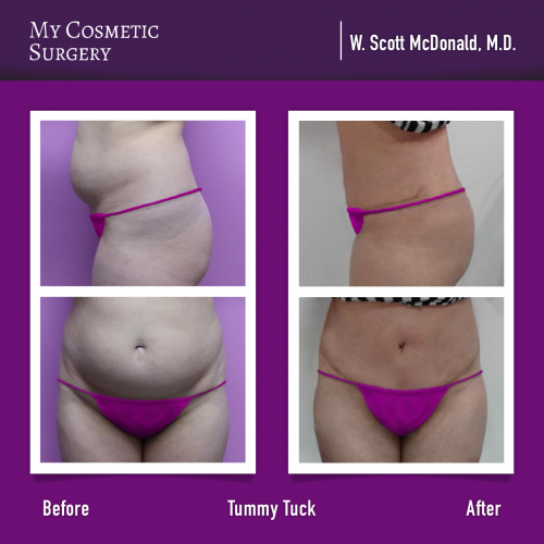 Dr. William Scott McDonald MD – Tummy Tuck