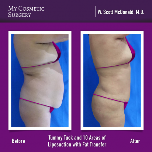 Dr. William Scott McDonald MD – Tummy Tuck y Transferencia de Grasa
