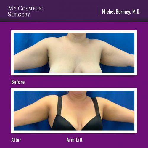 Dr. Michel Bormey MD – Arm Lift