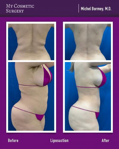 Dr. Michel Bormey MD – Liposuction