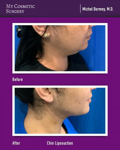 Dr. Michel Bormey MD – Chin Liposuction