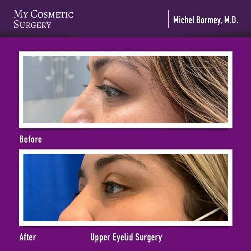 Dr. Michel Bormey MD – Upper Eyelid Surgery