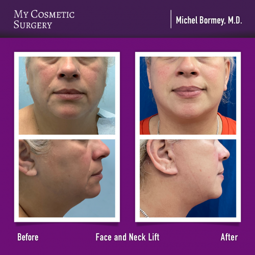 Dr. Michel Bormey MD – Face and Neck Lift